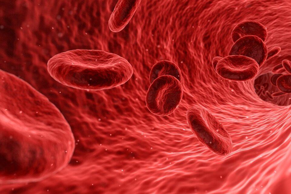 Carotid intima-media thickness progression as surrogate marker for cardiovascular risk